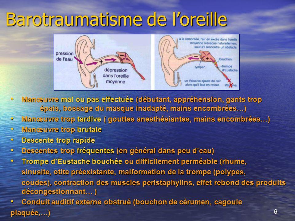 6 Barotraumatisme de loreille Manœuvre mal ou pas effectuée (débutant, appréhension, gants trop épais, bossage du masque inadapté, mains encombrées…)