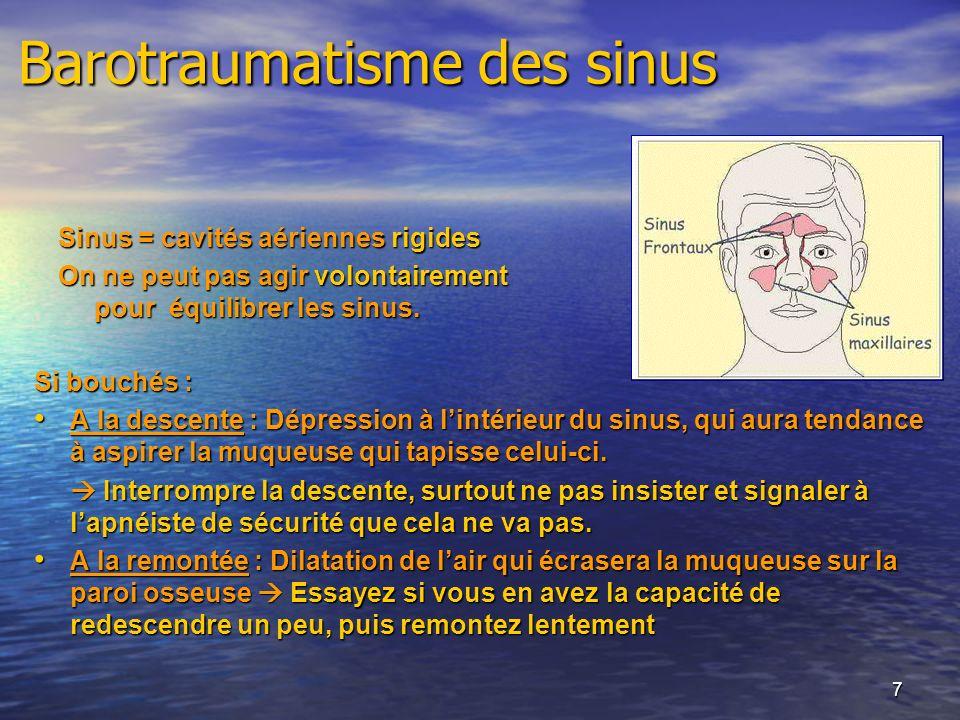 7 Barotraumatisme des sinus Si bouchés : A la descente : Dépression à lintérieur du sinus, qui aura tendance à aspirer la muqueuse qui tapisse celui-c