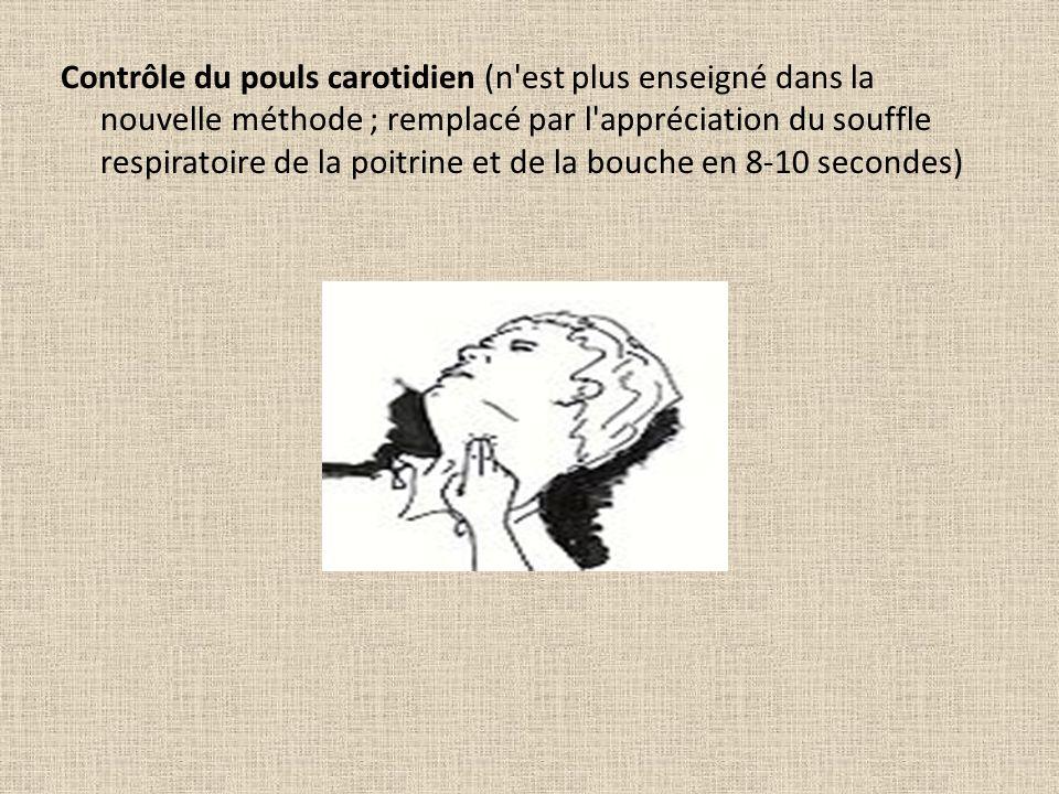 Contrôle du pouls carotidien (n est plus enseigné dans la nouvelle méthode ; remplacé par l appréciation du souffle respiratoire de la poitrine et de la bouche en 8-10 secondes)