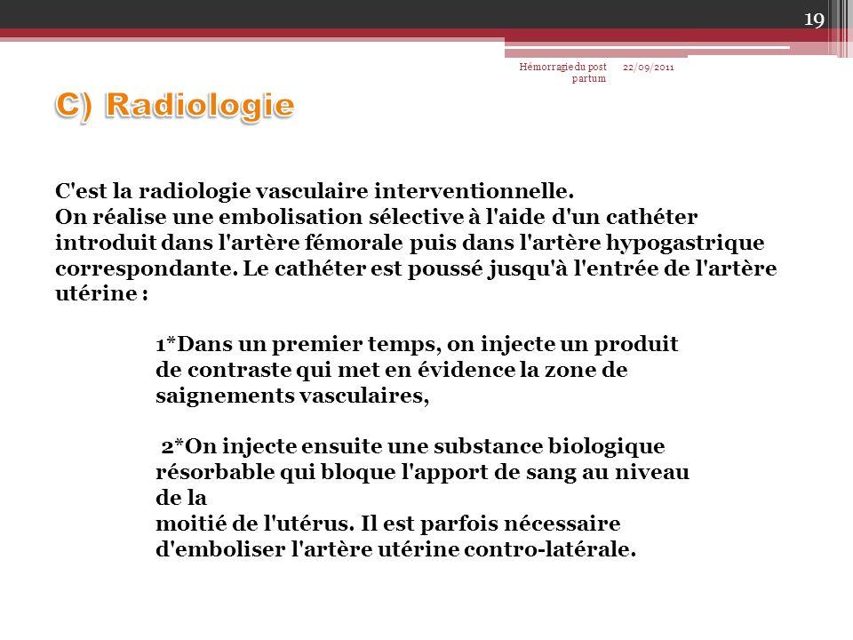 C'est la radiologie vasculaire interventionnelle. On réalise une embolisation sélective à l'aide d'un cathéter introduit dans l'artère fémorale puis d