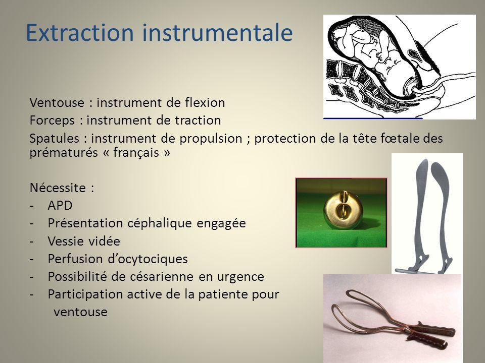 Extraction instrumentale Ventouse : instrument de flexion Forceps : instrument de traction Spatules : instrument de propulsion ; protection de la tête