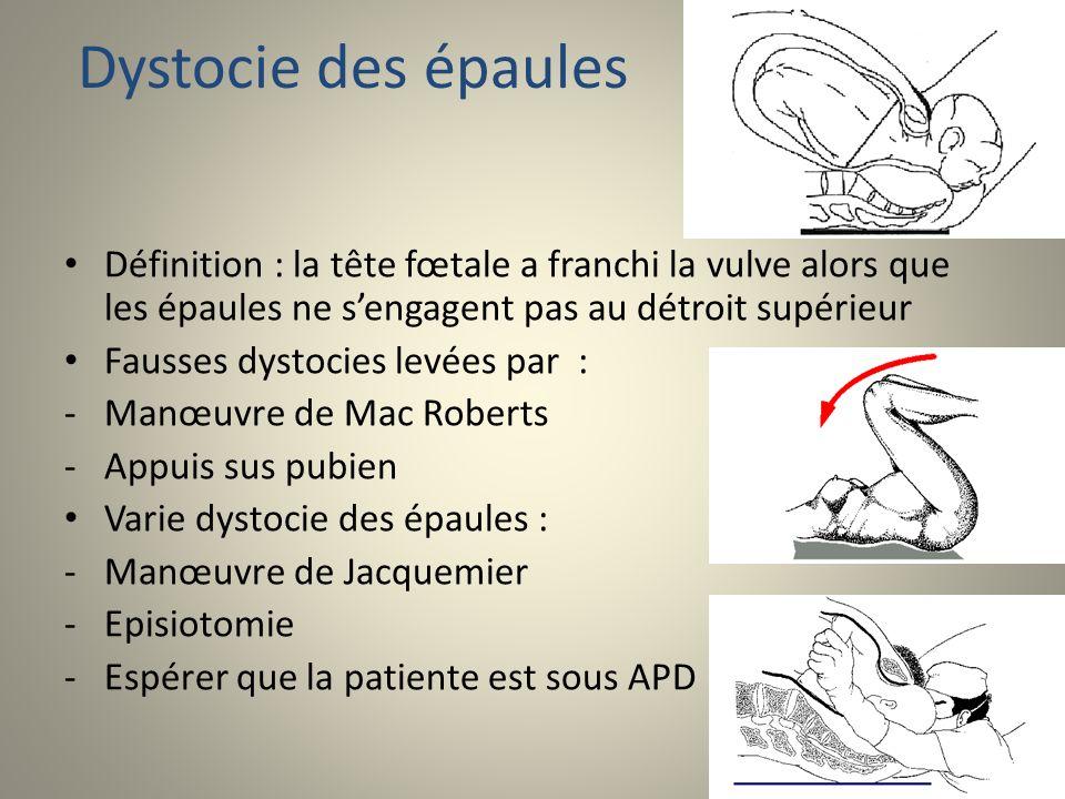Dystocie des épaules Définition : la tête fœtale a franchi la vulve alors que les épaules ne sengagent pas au détroit supérieur Fausses dystocies levé