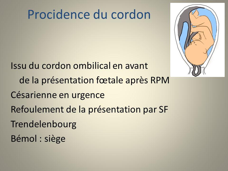Procidence du cordon Issu du cordon ombilical en avant de la présentation fœtale après RPM Césarienne en urgence Refoulement de la présentation par SF
