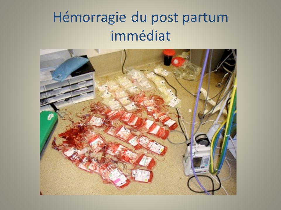 Hémorragie du post partum immédiat
