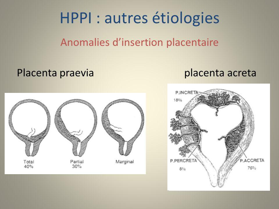HPPI : autres étiologies Anomalies dinsertion placentaire Placenta praeviaplacenta acreta