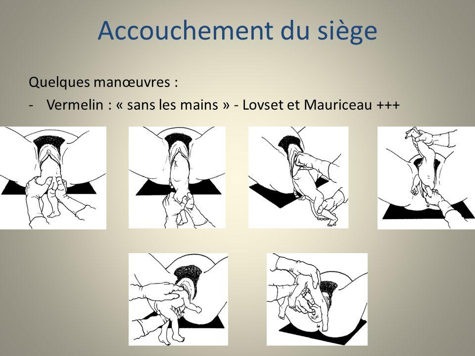 Accouchement du siège Quelques manœuvres : -Vermelin : « sans les mains » - Lovset et Mauriceau +++