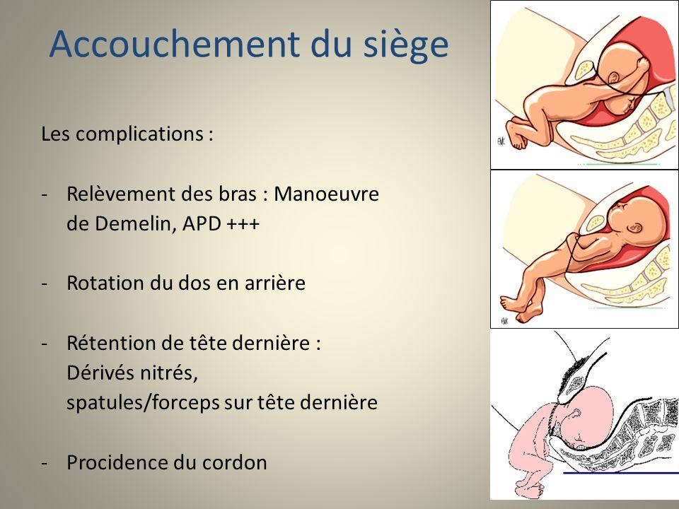 Accouchement du siège Les complications : -Relèvement des bras : Manoeuvre de Demelin, APD +++ -Rotation du dos en arrière -Rétention de tête dernière