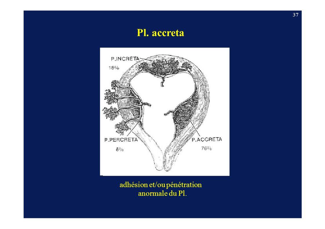 Pl. accreta adhésion et/ou pénétration anormale du Pl. 37
