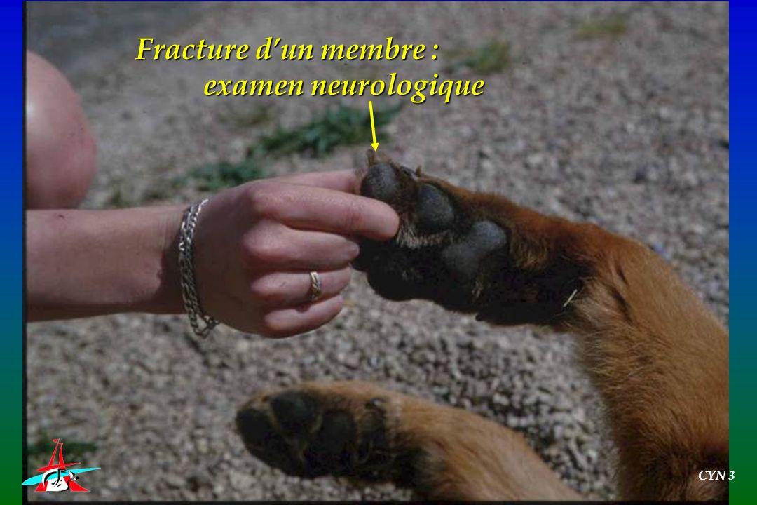 Fracture dun membre : examen neurologique CYN 3