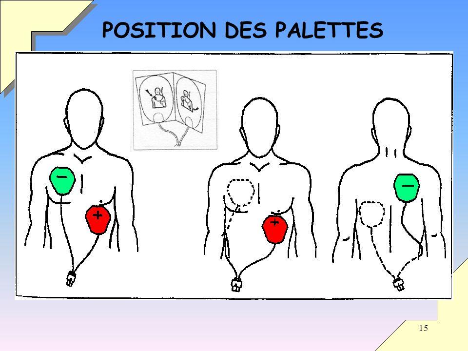 15 POSITION DES PALETTES