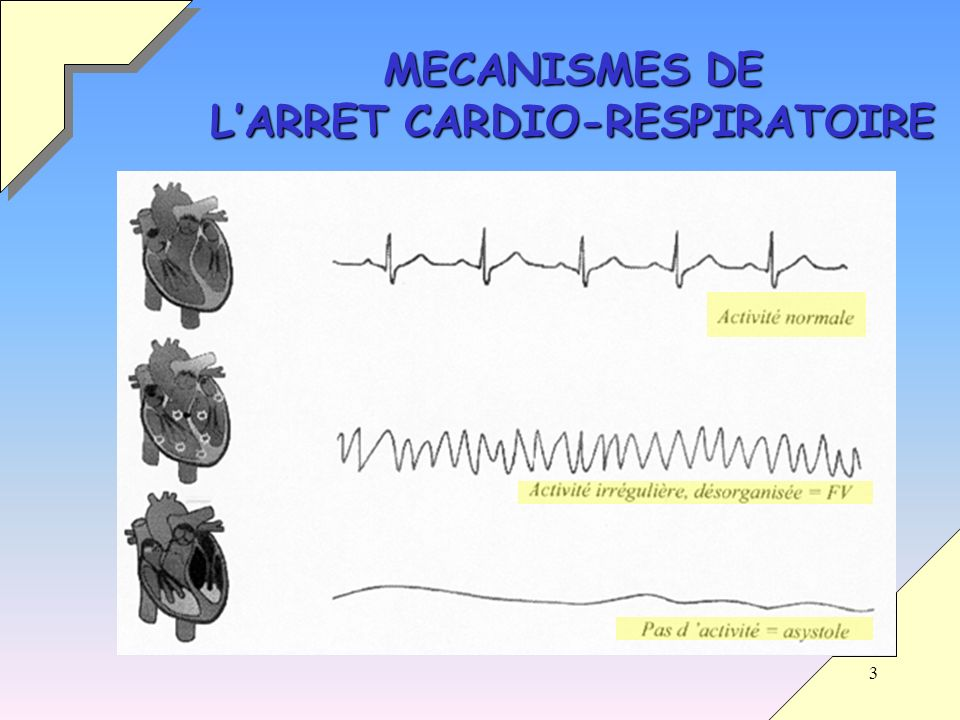 3 MECANISMES DE LARRET CARDIO-RESPIRATOIRE