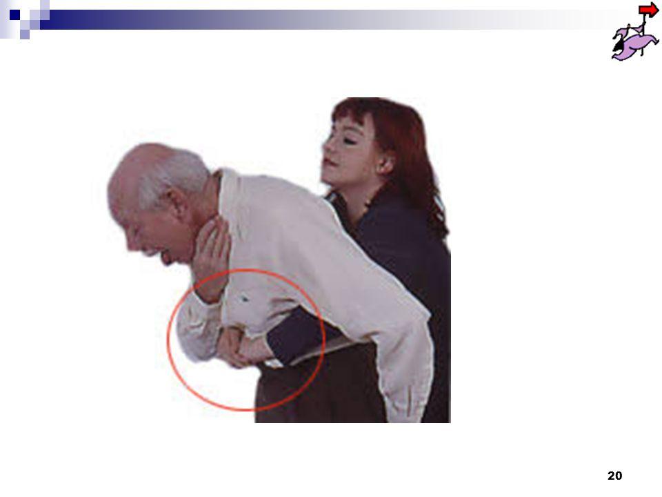 19 Méthode de HEIMLICH Placez-vous derrière la victime, contre son dos, passez vos bras sous les siens, de part et dautre de la partie supérieure de son abdomen ; Assurez-vous que la victime est bien penchée en avant, pour que lobstacle puisse être évacué par la bouche et non retourner dans les voies aériennes ; Mettez le poing sur la partie supérieure de labdomen, au creux de lestomac, en dessous du sternum.