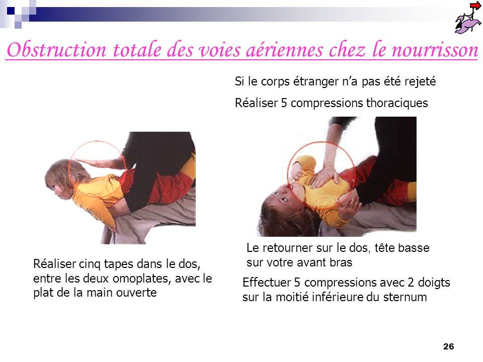 25 Si lobstruction persiste malgré tout : Réaliser à nouveau 5 claques vigoureuses dans le dos puis 5 compressions abdominales et ainsi de suite ; Arr