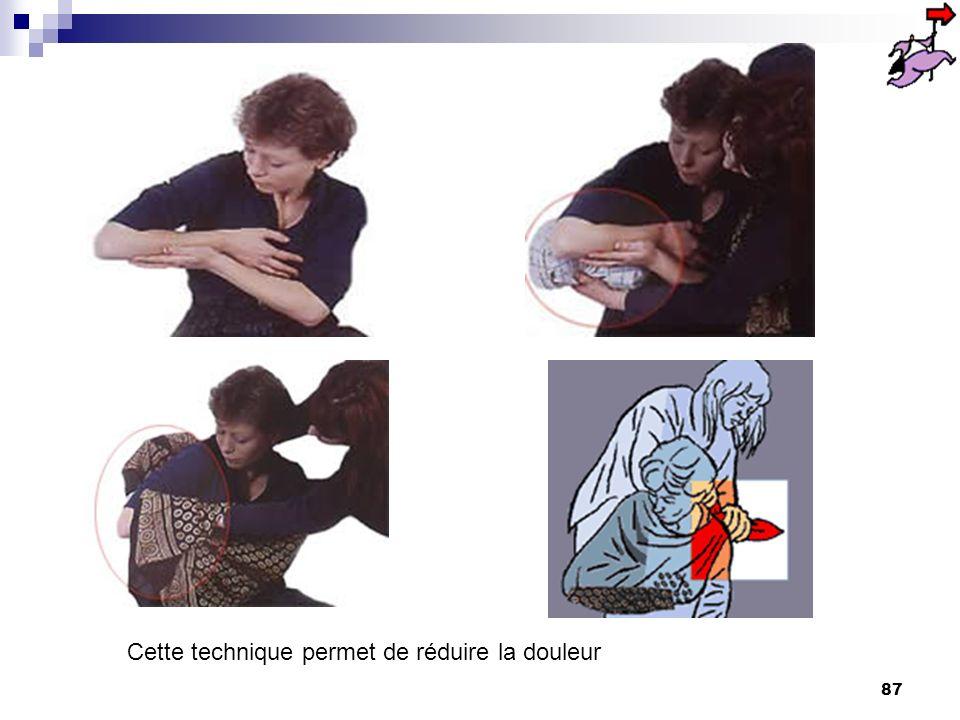86 luxation l'articulation est déboîtée et les surfaces articulaires ne sont plus en contact. La luxation de l'épaule est la plus fréquente. la victim