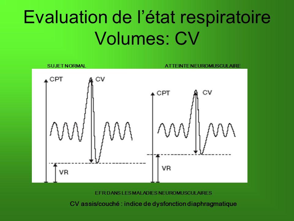 Evaluation de létat respiratoire Volumes: CV EFR DANS LES MALADIES NEUROMUSCULAIRES CV assis/couché : indice de dysfonction diaphragmatique SUJET NORMALATTEINTE NEUROMUSCULAIRE