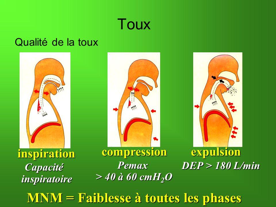 inspiration Capacité Capacitéinspiratoire MNM = Faiblesse à toutes les phases compressionexpulsion Pemax > 40 à 60 cmH 2 O DEP > 180 L/min DEP > 180 L