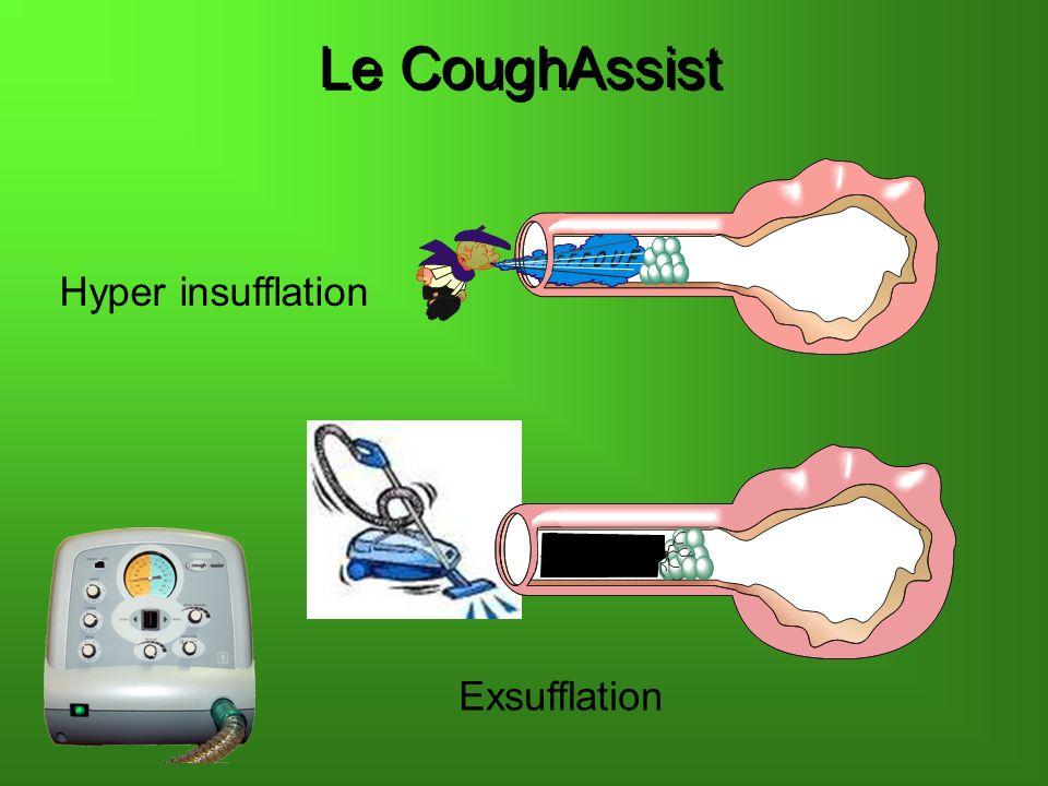 Le CoughAssist Hyper insufflation Exsufflation