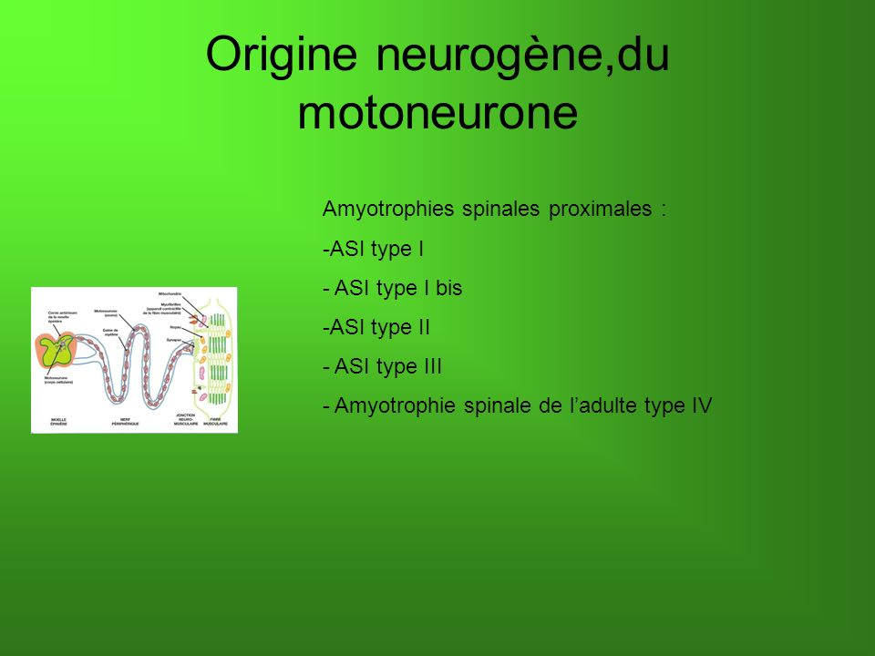 Origine neurogène,du motoneurone Amyotrophies spinales proximales : -ASI type I - ASI type I bis -ASI type II - ASI type III - Amyotrophie spinale de ladulte type IV