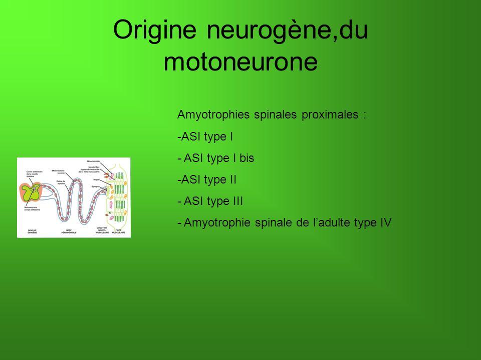 Origine neurogène, nerf périphérique Maladies de Charcot-Marie-Tooth (CMT) Démyélinisante ou axonale - CMT 1 - CMT 4 - CMT 2 - CMT dominantes liées à lX - CMT intermédiaire autosomique dominante