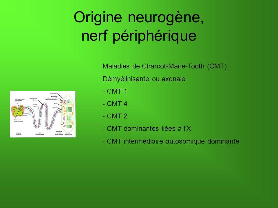 Origine neurogène, nerf périphérique Maladies de Charcot-Marie-Tooth (CMT) Démyélinisante ou axonale - CMT 1 - CMT 4 - CMT 2 - CMT dominantes liées à