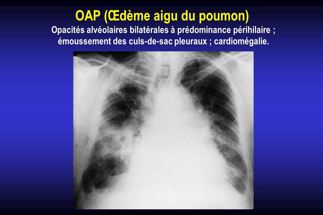 OAP (Œdème aigu du poumon) Opacités alvéolaires bilatérales à prédominance périhilaire ; émoussement des culs-de-sac pleuraux ; cardiomégalie.