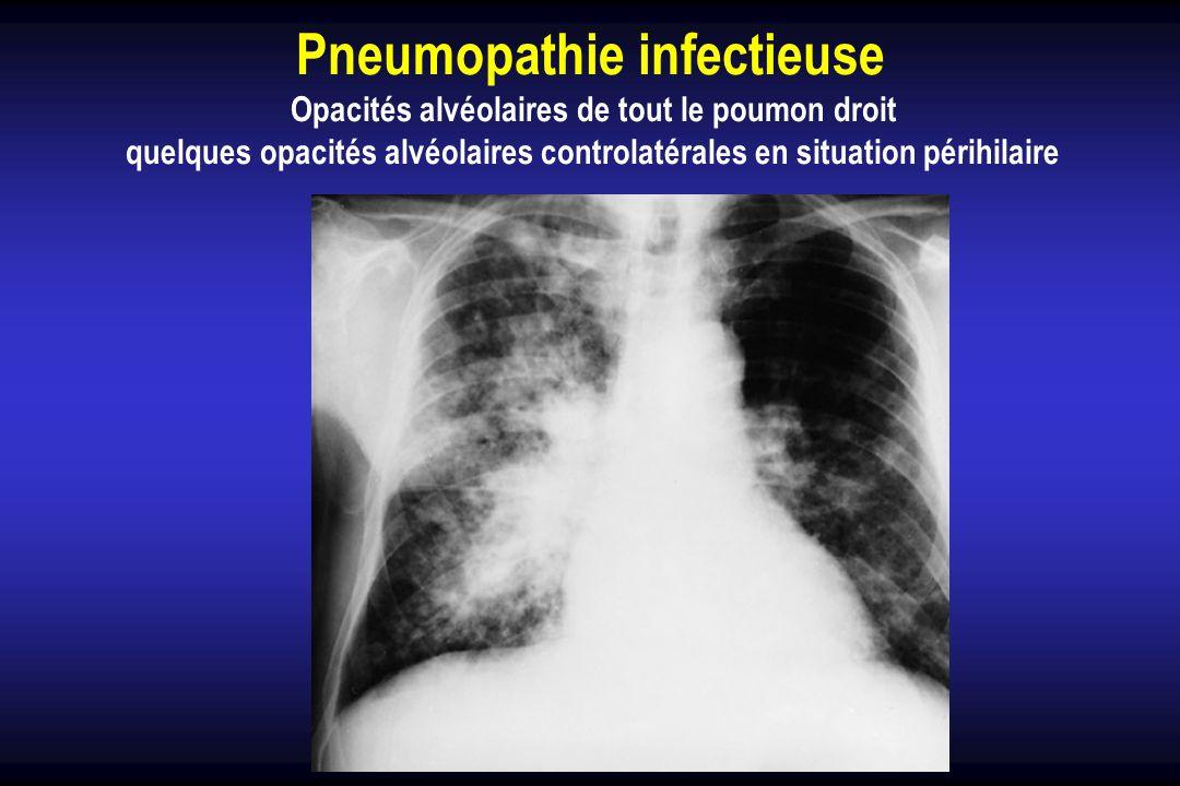 Pneumopathie infectieuse Opacités alvéolaires de tout le poumon droit quelques opacités alvéolaires controlatérales en situation périhilaire