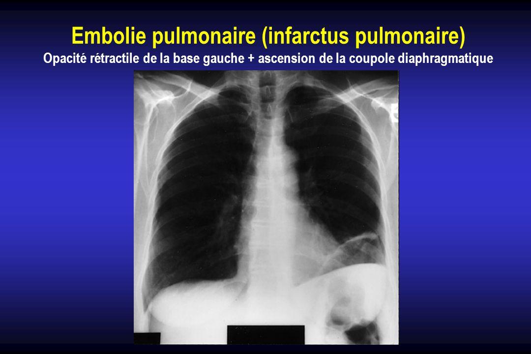 Embolie pulmonaire (infarctus pulmonaire) Opacité rétractile de la base gauche + ascension de la coupole diaphragmatique