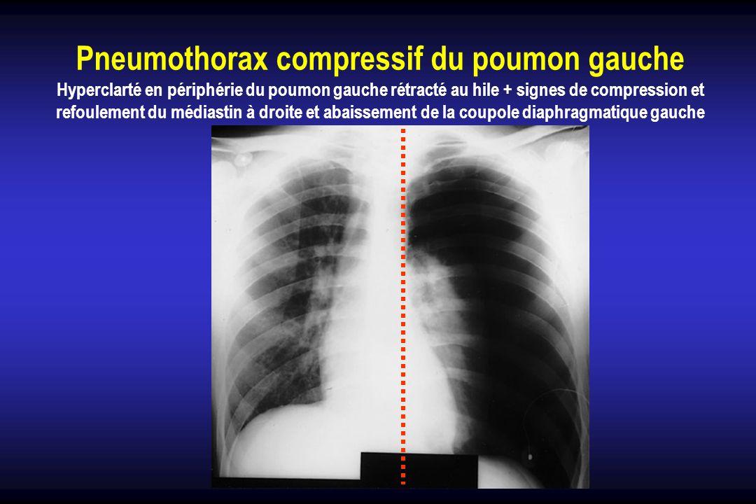 Pneumothorax compressif du poumon gauche Hyperclarté en périphérie du poumon gauche rétracté au hile + signes de compression et refoulement du médiast