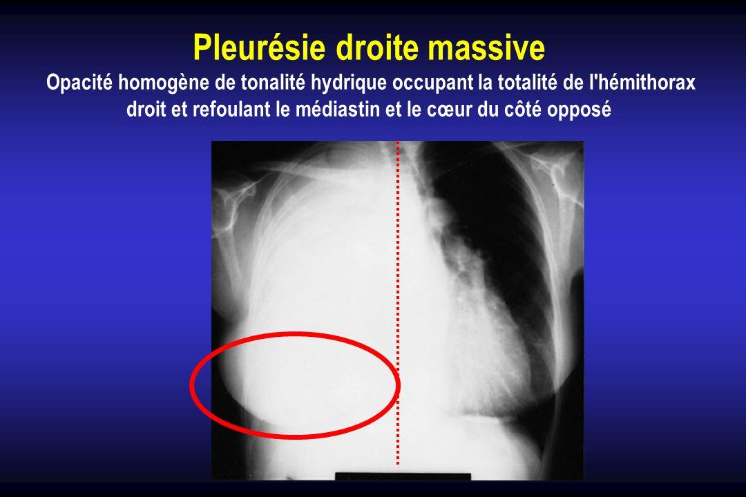 Pleurésie droite massive Opacité homogène de tonalité hydrique occupant la totalité de l'hémithorax droit et refoulant le médiastin et le cœur du côté
