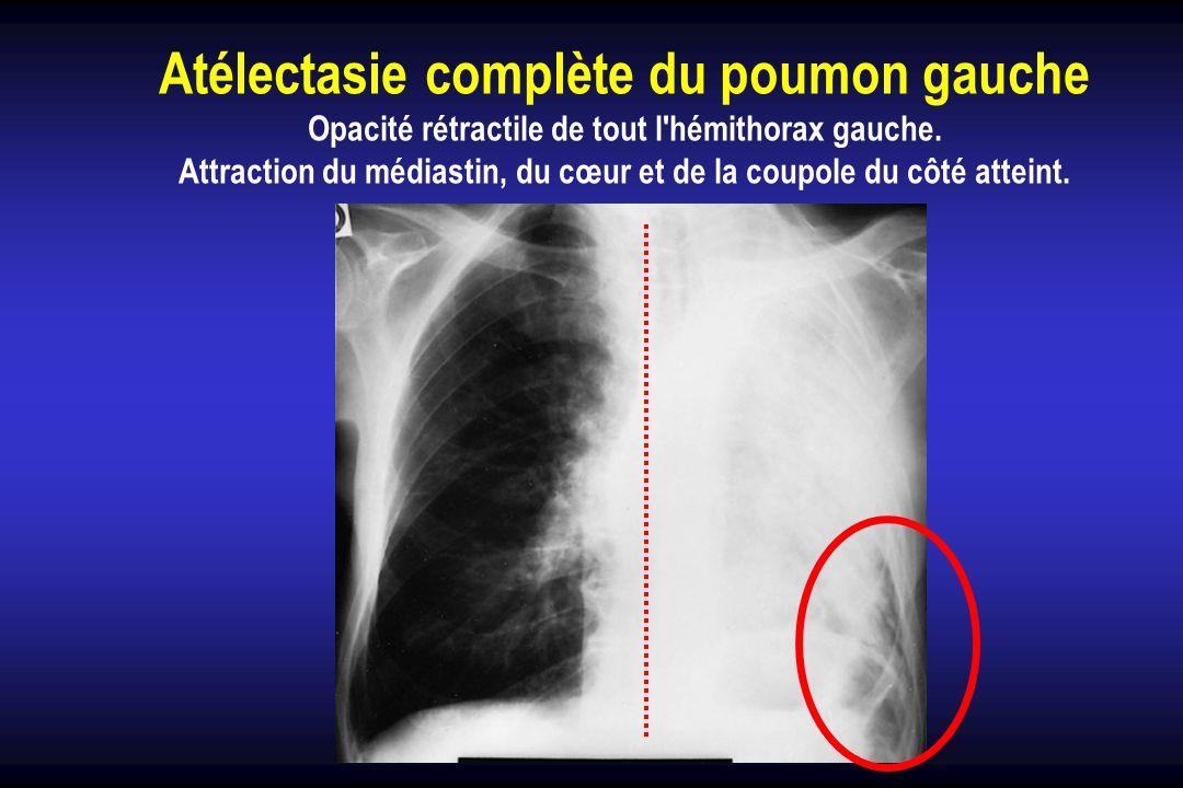 Atélectasie complète du poumon gauche Opacité rétractile de tout l'hémithorax gauche. Attraction du médiastin, du cœur et de la coupole du côté attein