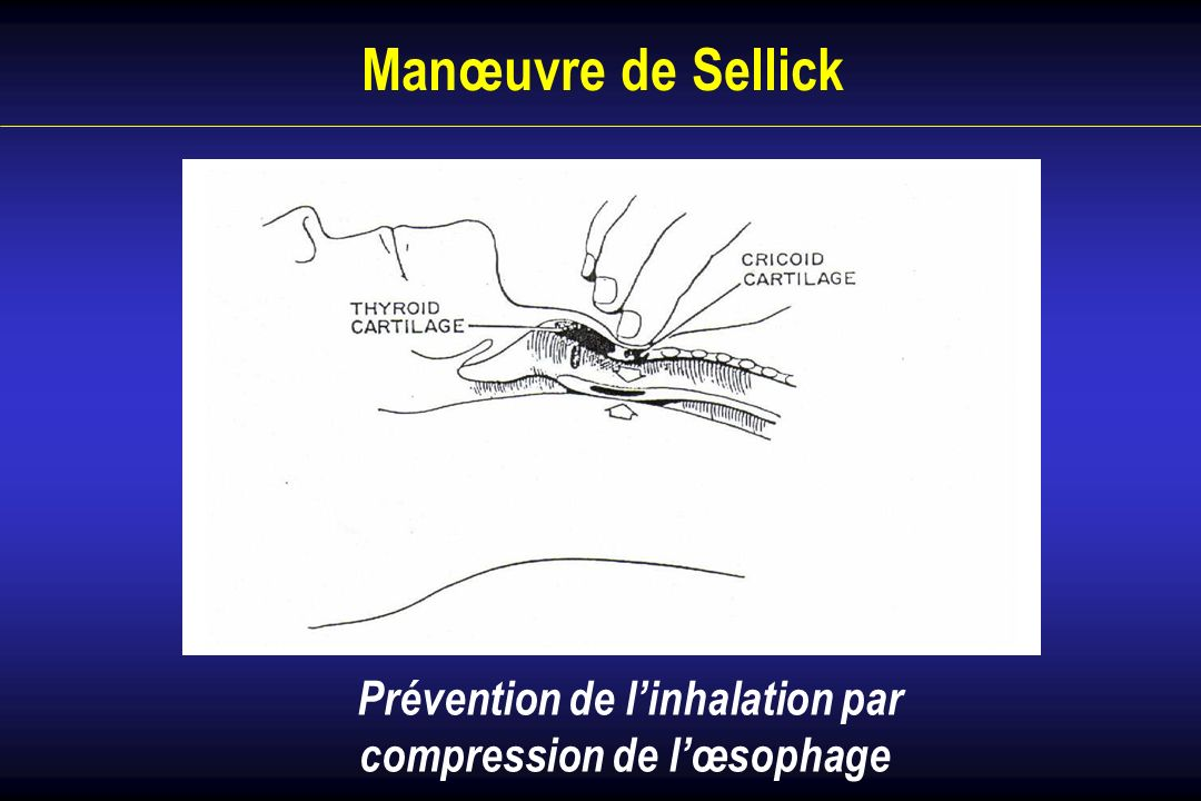 Manœuvre de Sellick Prévention de linhalation par compression de lœsophage