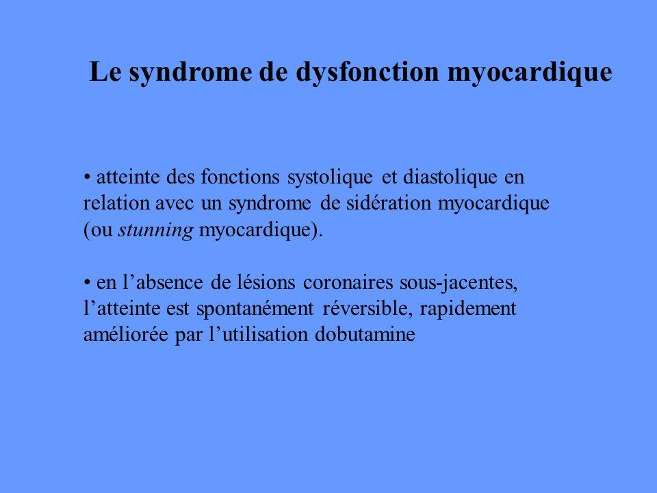 Le syndrome de dysfonction myocardique atteinte des fonctions systolique et diastolique en relation avec un syndrome de sidération myocardique (ou stu