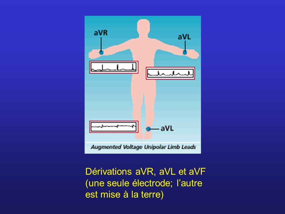 Dérivations aVR, aVL et aVF (une seule électrode; lautre est mise à la terre)