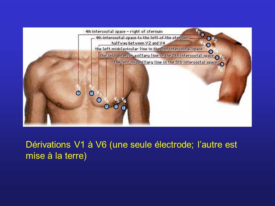 Dérivations V1 à V6 (une seule électrode; lautre est mise à la terre)