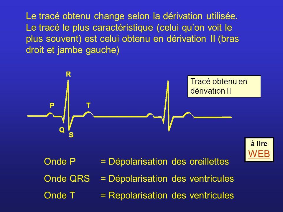 Le tracé obtenu change selon la dérivation utilisée. Le tracé le plus caractéristique (celui quon voit le plus souvent) est celui obtenu en dérivation