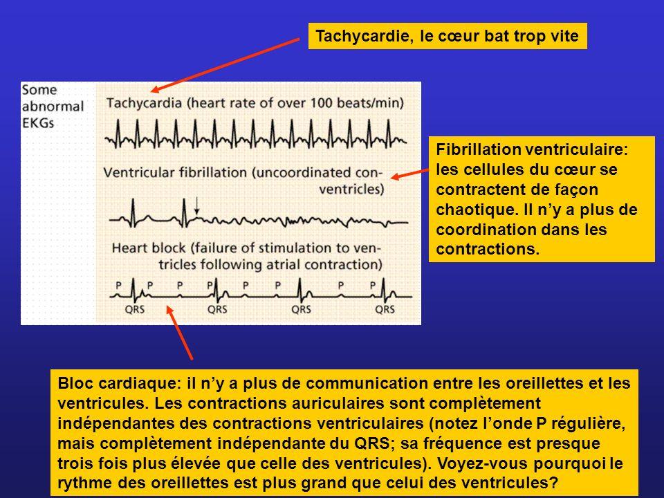 Tachycardie, le cœur bat trop vite Fibrillation ventriculaire: les cellules du cœur se contractent de façon chaotique. Il ny a plus de coordination da