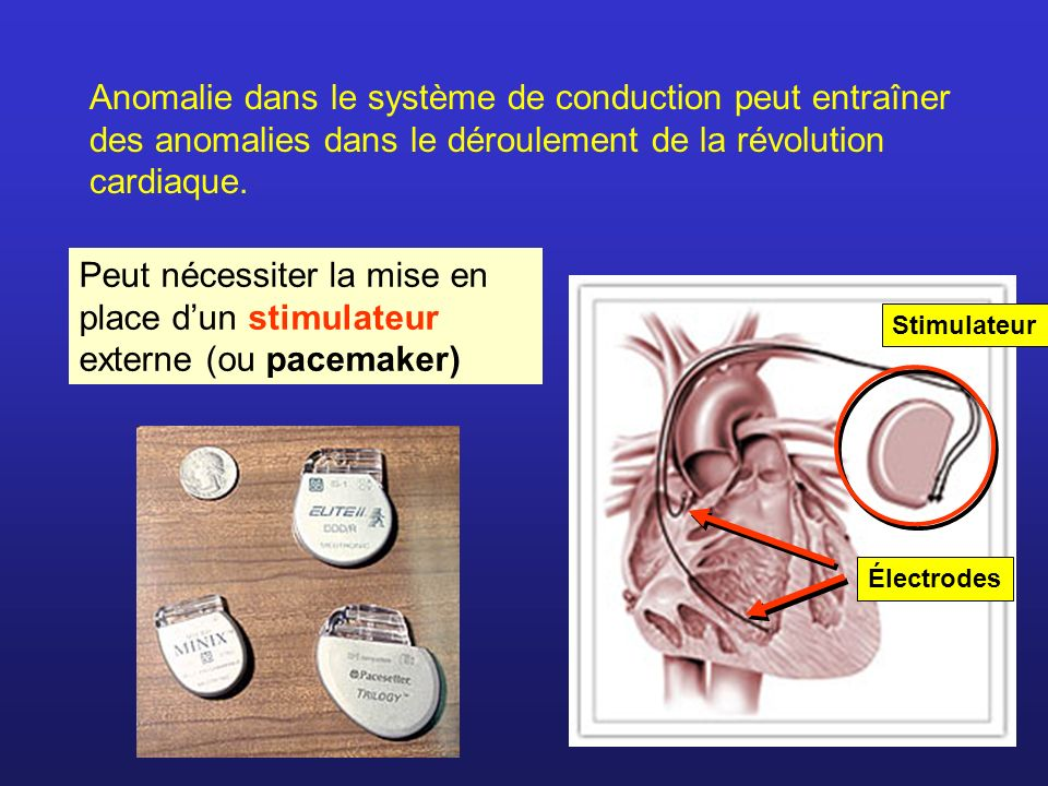 Anomalie dans le système de conduction peut entraîner des anomalies dans le déroulement de la révolution cardiaque. Peut nécessiter la mise en place d