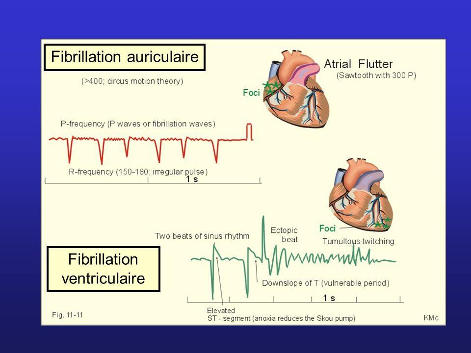 Fibrillation auriculaire Fibrillation ventriculaire