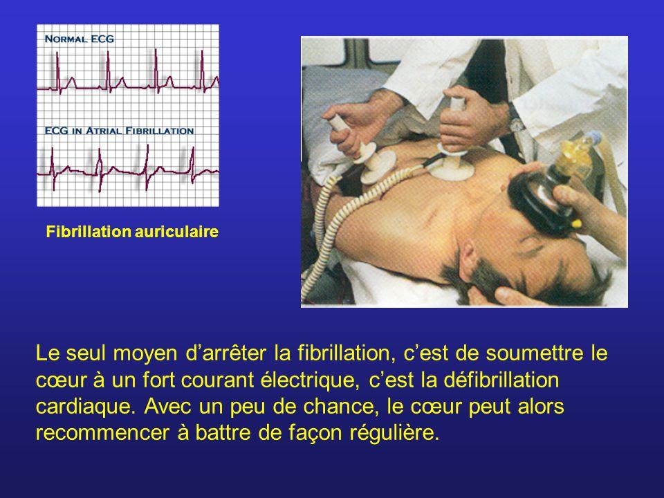 Fibrillation auriculaire Le seul moyen darrêter la fibrillation, cest de soumettre le cœur à un fort courant électrique, cest la défibrillation cardia