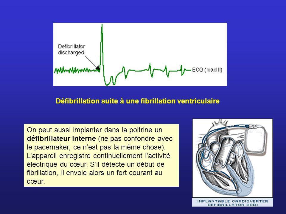 Défibrillation suite à une fibrillation ventriculaire On peut aussi implanter dans la poitrine un défibrillateur interne (ne pas confondre avec le pac