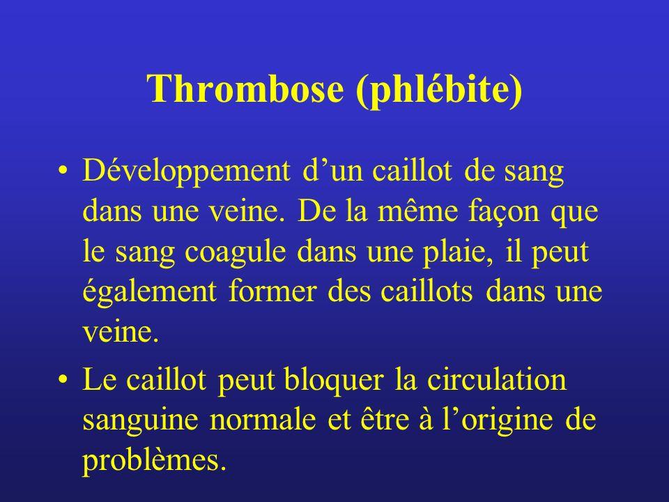 Thrombose (phlébite) Développement dun caillot de sang dans une veine. De la même façon que le sang coagule dans une plaie, il peut également former d