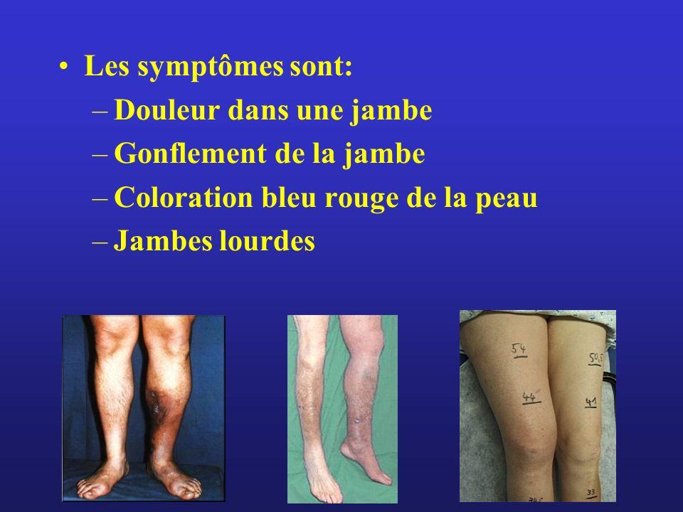 Les symptômes sont: –Douleur dans une jambe –Gonflement de la jambe –Coloration bleu rouge de la peau –Jambes lourdes