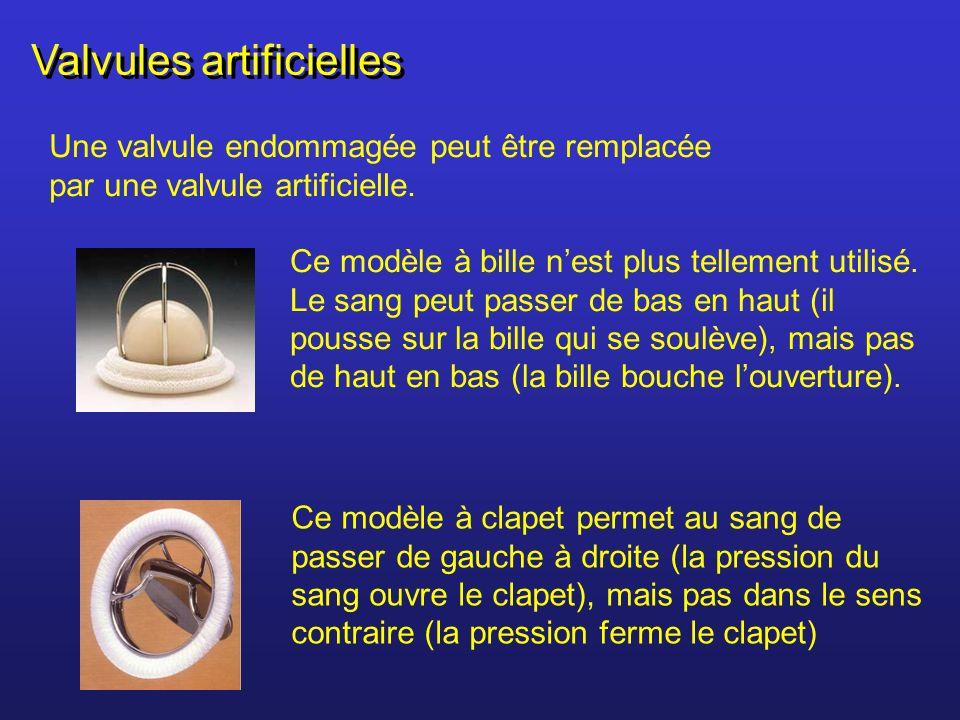 Valvules artificielles Une valvule endommagée peut être remplacée par une valvule artificielle. Ce modèle à bille nest plus tellement utilisé. Le sang