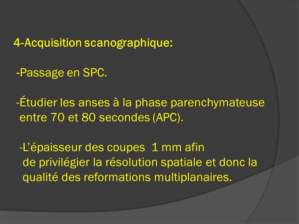 4-Acquisition scanographique: -Passage en SPC. -Étudier les anses à la phase parenchymateuse entre 70 et 80 secondes (APC). -Lépaisseur des coupes 1 m