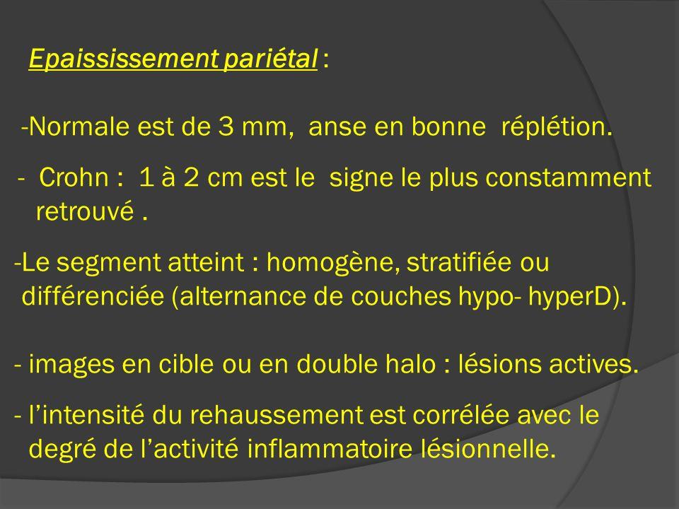 Epaississement pariétal : -Normale est de 3 mm, anse en bonne réplétion. - Crohn : 1 à 2 cm est le signe le plus constamment retrouvé. -Le segment att