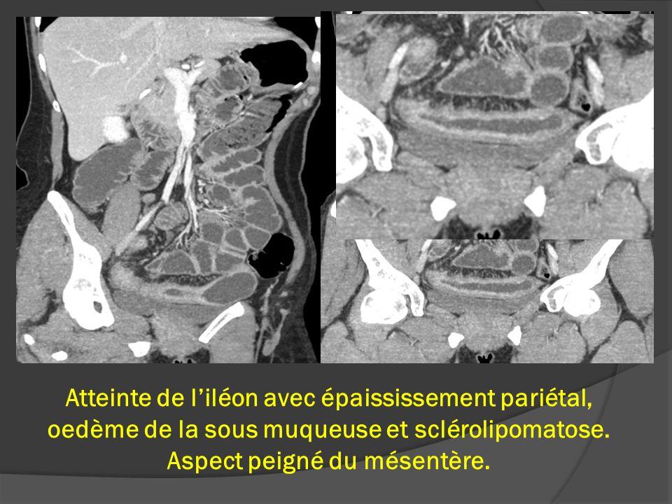 Atteinte de liléon avec épaississement pariétal, oedème de la sous muqueuse et sclérolipomatose. Aspect peigné du mésentère.