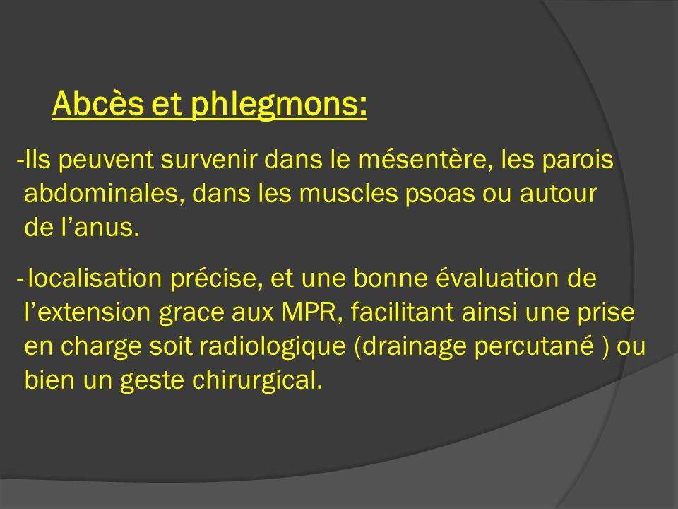 Abcès et phlegmons: -Ils peuvent survenir dans le mésentère, les parois abdominales, dans les muscles psoas ou autour de lanus. - localisation précise
