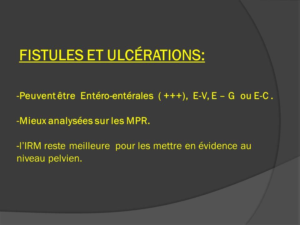 FISTULES ET ULCÉRATIONS: -Peuvent être Entéro-entérales ( +++), E-V, E – G ou E-C. -Mieux analysées sur les MPR. -lIRM reste meilleure pour les mettre