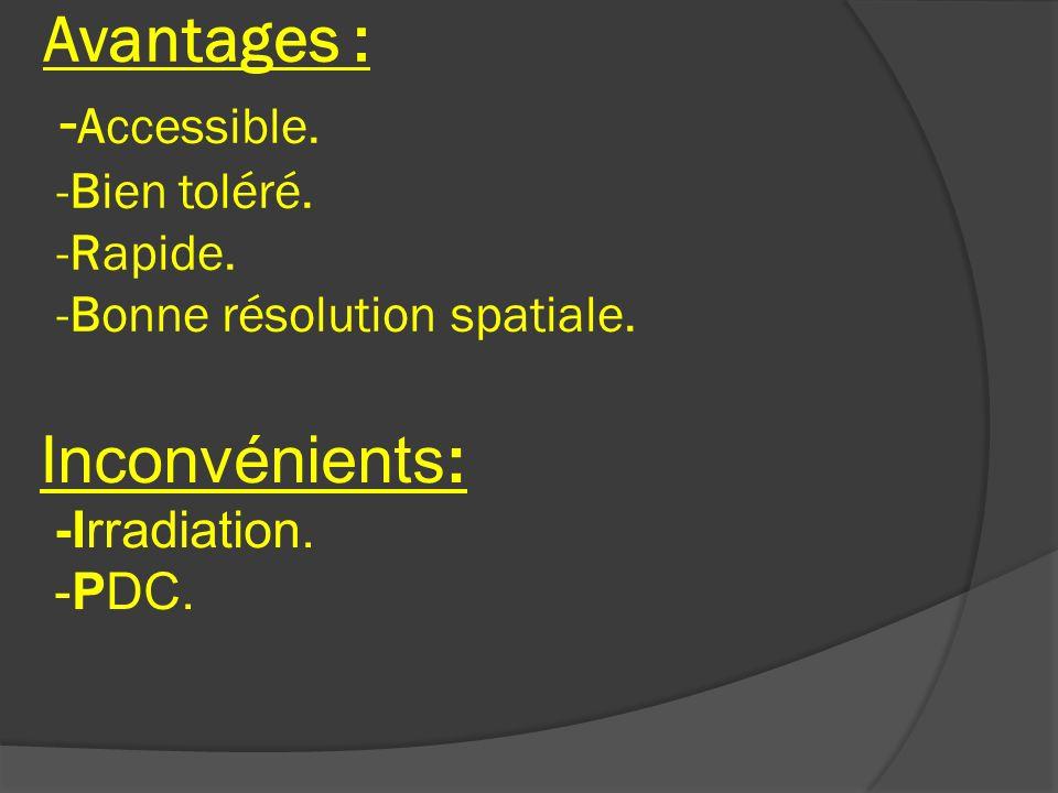 Avantages : - Accessible. -Bien toléré. -Rapide. -Bonne résolution spatiale. Inconvénients: -Irradiation. -PDC.