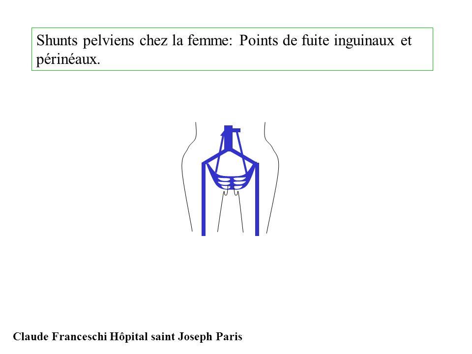 Shunts pelviens chez la femme: Points de fuite inguinaux et périnéaux. Claude Franceschi Hôpital saint Joseph Paris